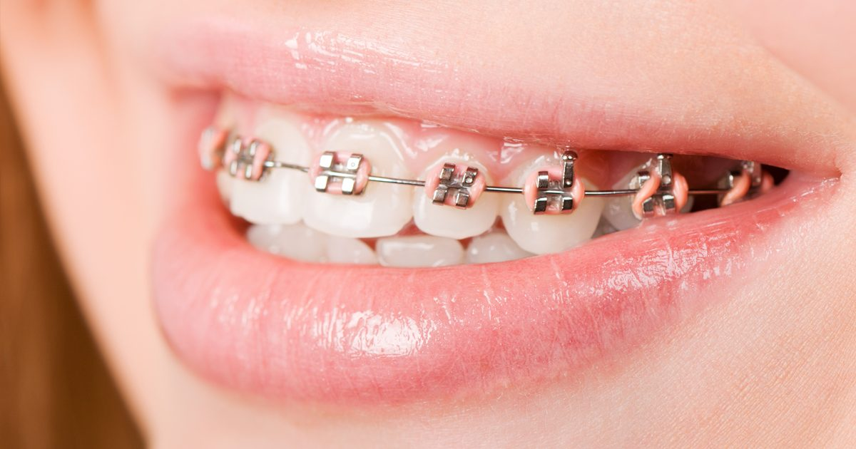 Patient with traditional metal braces at BRO