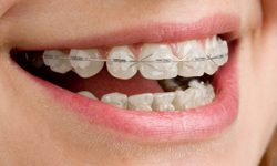 Girl with clear orthodontic braces smiling