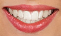 Woman with Invisalign aligner smiling for picture