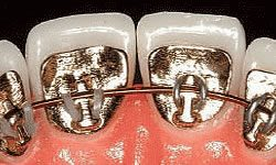 Close up showing lingual braces behind patient's teeth