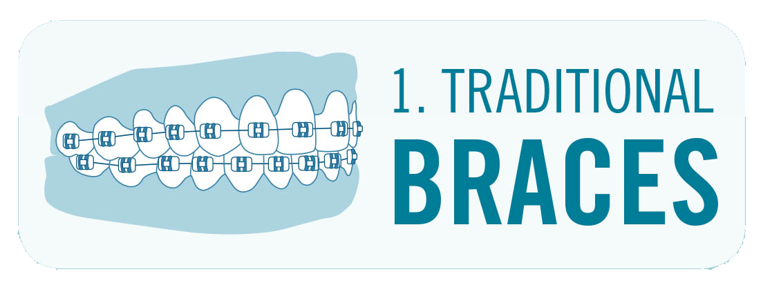 traditional braces image with teeth