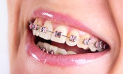 Teenager showing off her traditional metal braces