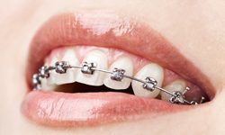 Teen with self ligating braces in Asheville
