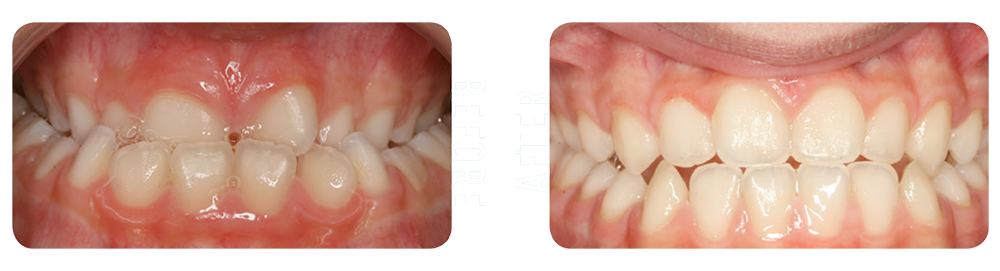 Before and after picture of orthodontic patient in Asheville