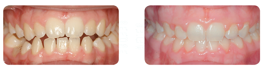Photo showing patient's teeth before and after being treated by Blue Ridge Orthodontics