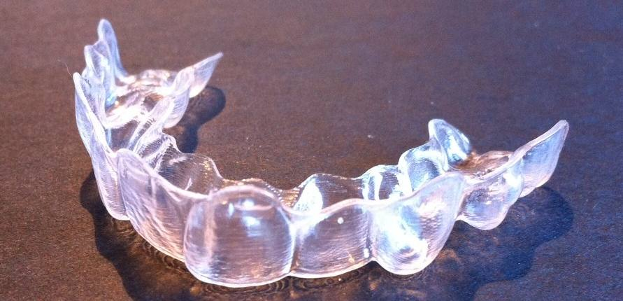 Invisalign aligner used by teenager in Asheville, NC
