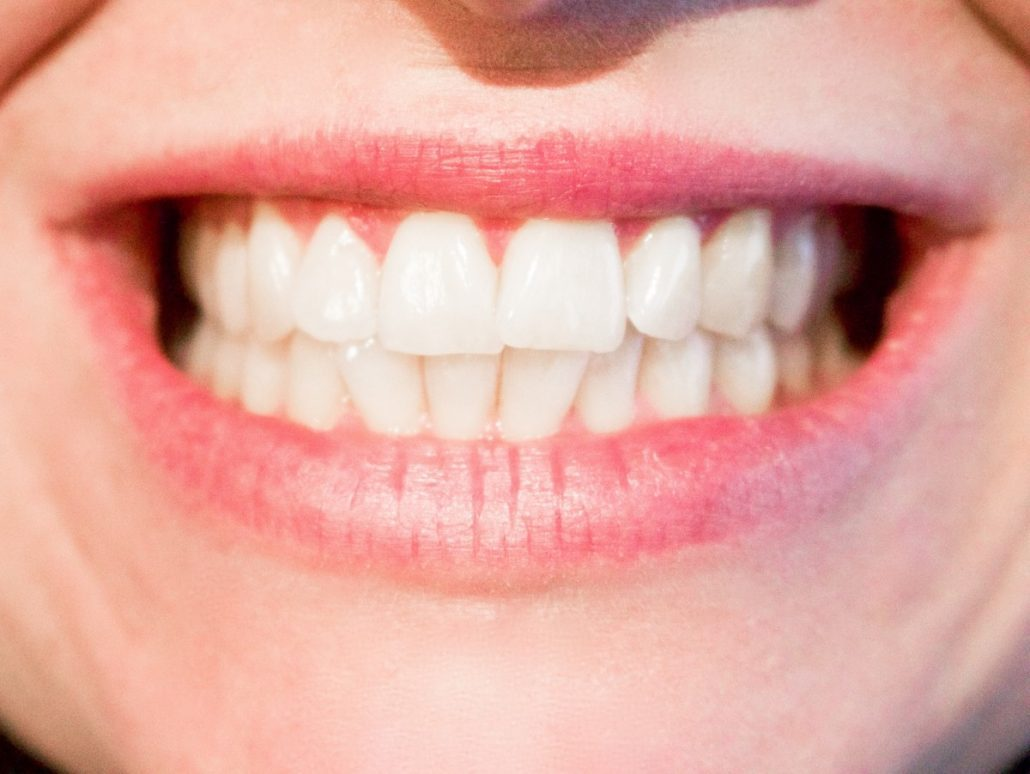 Woman with Invisalign aligners smiling in Asheville