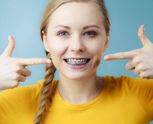 Woman who has gotten blue colored braces in Western North Carolina