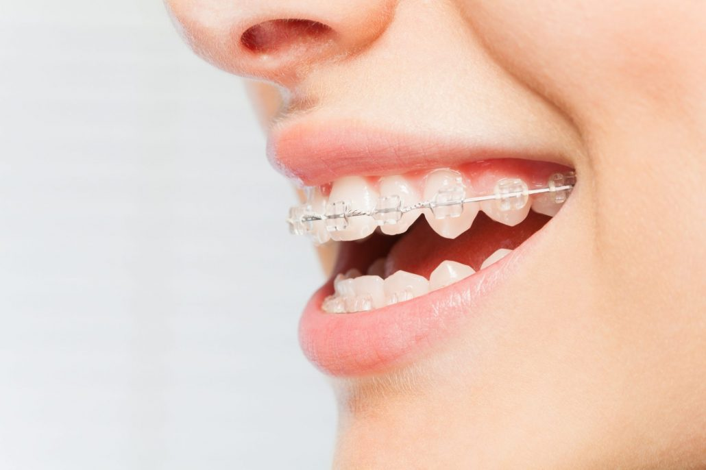 Woman in Asheville gets ceramic braces at orthodontist clinic