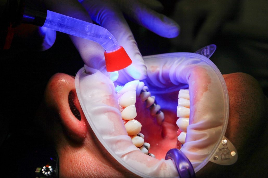Person getting teeth whitened after braces in Asheville
